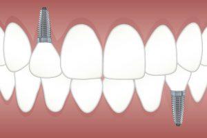 השתלות שיניים- מהם סיכויי ההצלחה של הטיפול