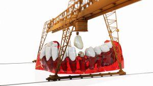 השתלות שיניים מהם סיכויי ההצלחה של הטיפול